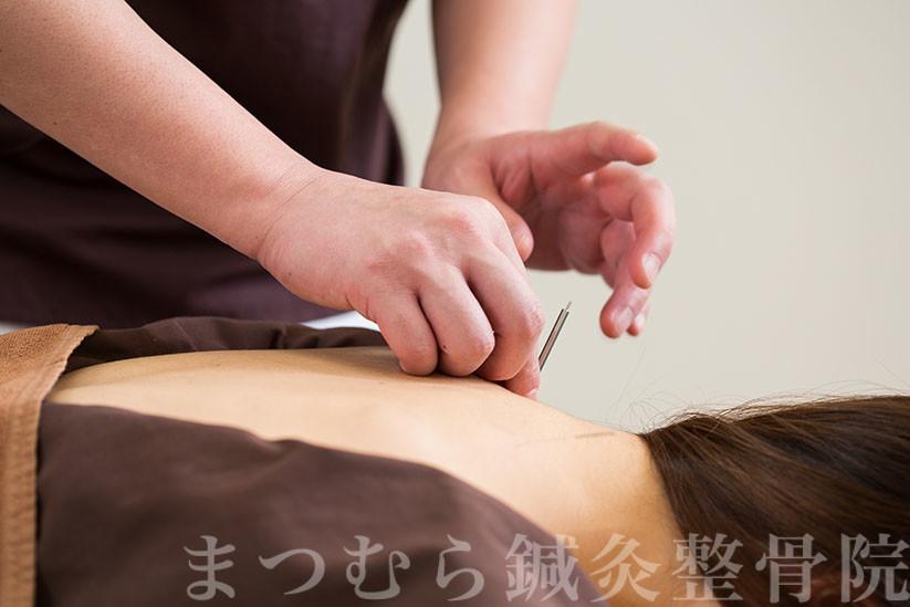 緊張型頭痛の鍼治療