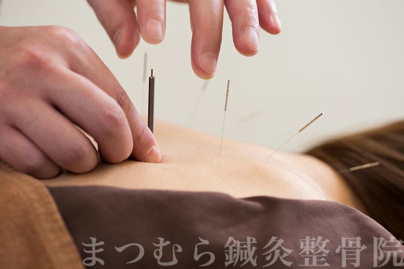 片頭痛の鍼治療