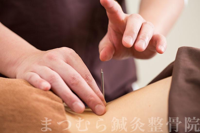 鍼灸と抜群の相性を誇る