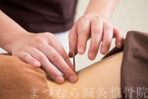 鍼灸<small>(針灸・はりきゅう)</small>について