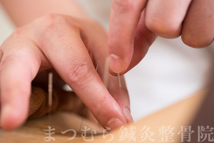 西洋医学的鍼灸治療