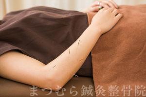 膵炎の治療