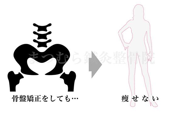 骨盤矯正のウソ2